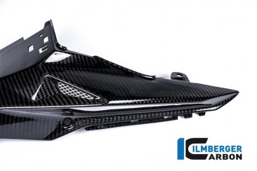 Carbon Fiber Seat Surround Set by Ilmberger Carbon